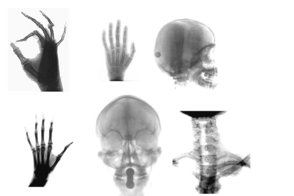 人体X光片效果、骨骼透视PS笔刷